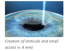 auckland eye laser vision correction
