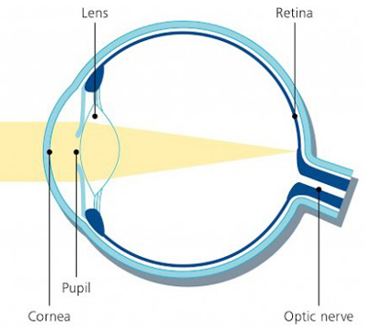 normal vision auckland eye laser