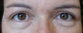 Post-op upper blepharoplasty