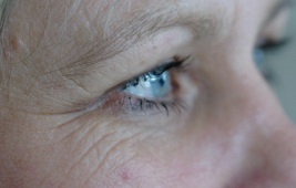 Lateral eyelid line - 'crows feet'