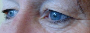 Pre-op upper blepharoplasty (oblique view)
