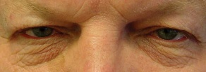 Upper lids would benefit from blepharoplasty